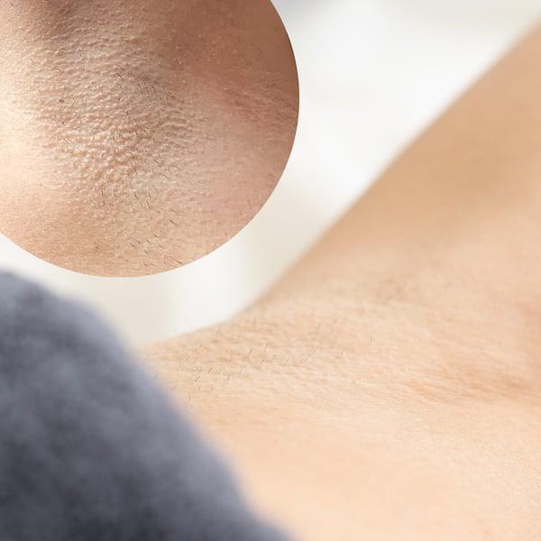 armpits-before